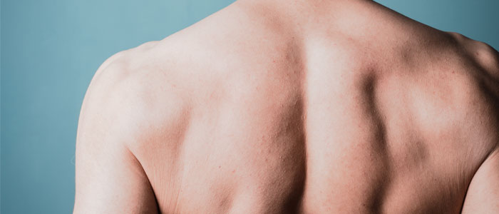 person doing shoulder blade squeeze